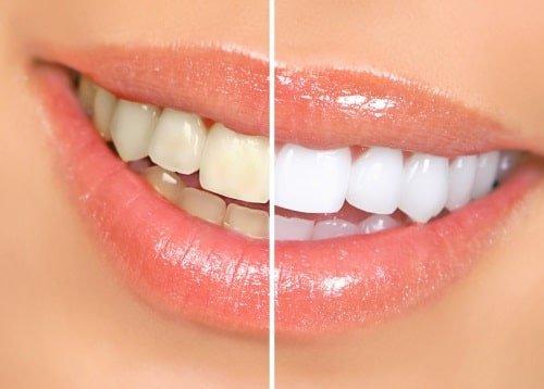 Blanqueamiento Dental - Se puede llegar a reducir de 2 a 3 tonos del color que actualmente se tenga.