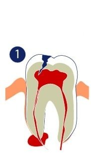 Endodoncia - La pulpa del diente se ha dañado y necesita reparación.