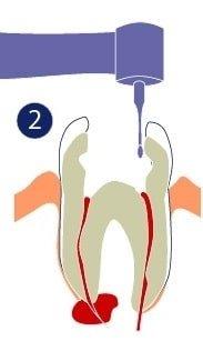 Endodoncia - Se hace una abertura en el diente.