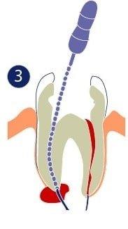 Endodoncia - Los canales se limpian