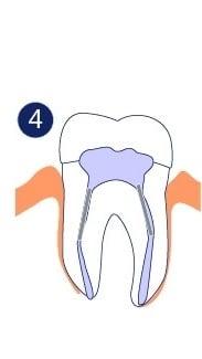 Endodoncia - El diente se rellena y una corona es instalada.