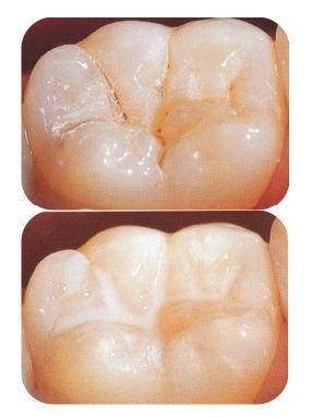 Los selladores son un tratamiento preventivo es decir se colocan en dientes sanos para evitar que haya caries en un futuro.